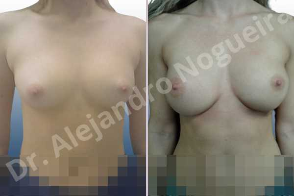 Asymmetric breasts,Cross eyed breasts,Narrow breasts,Small breasts,Anatomical shape,Inframammary incision,Subfascial pocket plane - photo 1