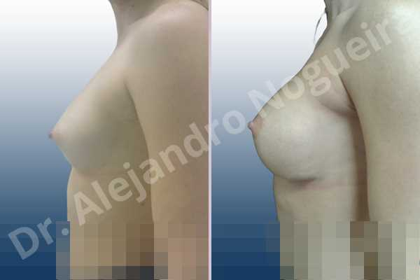 Asymmetric breasts,Cross eyed breasts,Narrow breasts,Small breasts,Anatomical shape,Inframammary incision,Subfascial pocket plane - photo 2