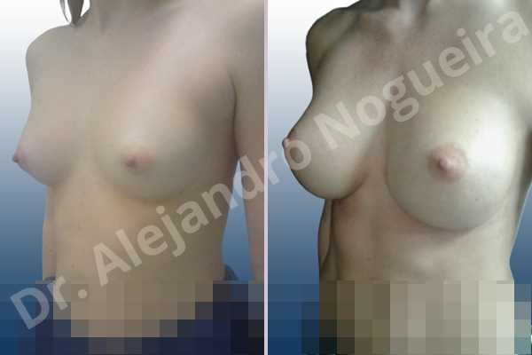 Asymmetric breasts,Cross eyed breasts,Narrow breasts,Small breasts,Anatomical shape,Inframammary incision,Subfascial pocket plane - photo 3