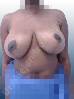 Asymmetric breasts,Cross eyed breasts,Displaced malpositioned scars,Failed breast reduction,Hypertrophic scars,Keloid scars,Lateral breasts,Pendulous breasts,Pigmented scars,Severely large breasts,Too far apart wide cleavage breasts,Wide scars,Anchor incision,Custom incision,Excisional scar revision,Superior pedicle