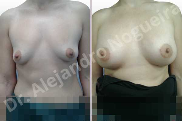 Empty breasts,Lateral breasts,Pigeon chest,Small breasts,Too far apart wide cleavage breasts,Wide breasts,Anatomical shape,Lower hemi periareolar incision,Subfascial pocket plane - photo 1
