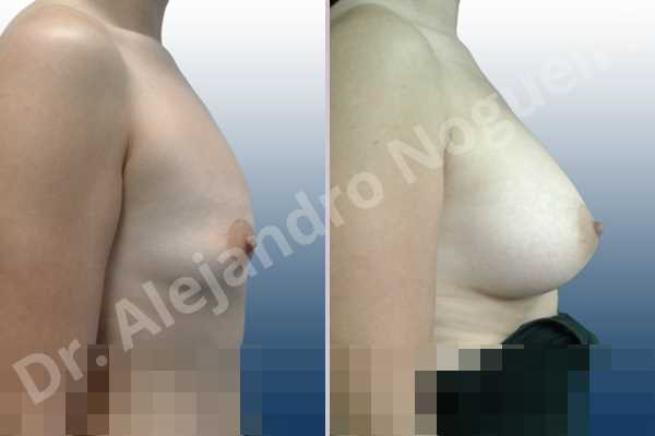 Empty breasts,Lateral breasts,Pigeon chest,Small breasts,Too far apart wide cleavage breasts,Wide breasts,Anatomical shape,Lower hemi periareolar incision,Subfascial pocket plane - photo 4