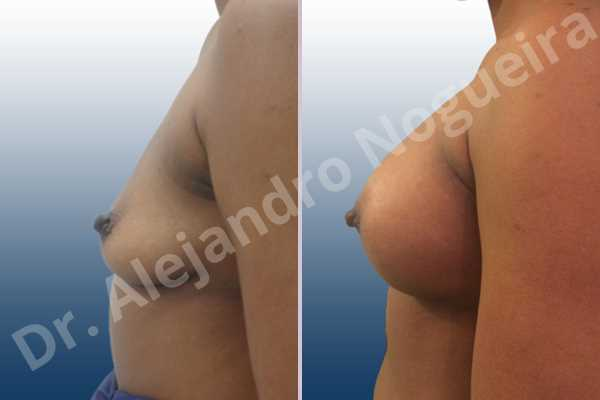 Empty breasts,Lateral breasts,Slightly saggy droopy breasts,Small breasts,Anatomical shape,Lower hemi periareolar incision,Subfascial pocket plane - photo 2