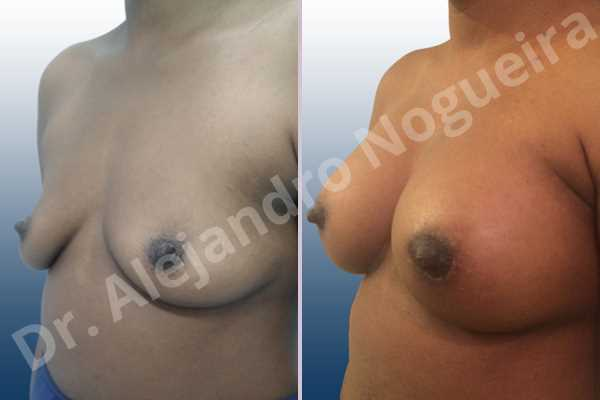 Empty breasts,Lateral breasts,Slightly saggy droopy breasts,Small breasts,Anatomical shape,Lower hemi periareolar incision,Subfascial pocket plane - photo 3