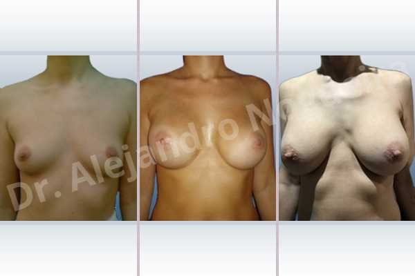 Empty breasts,Lateral breasts,Narrow breasts,Skinny breasts,Small breasts,Too far apart wide cleavage breasts,Dual plane pocket,Lower hemi periareolar incision,Round shape - photo 1