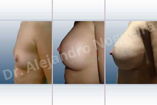 Empty breasts,Lateral breasts,Narrow breasts,Skinny breasts,Small breasts,Too far apart wide cleavage breasts,Dual plane pocket,Lower hemi periareolar incision,Round shape - photo 2