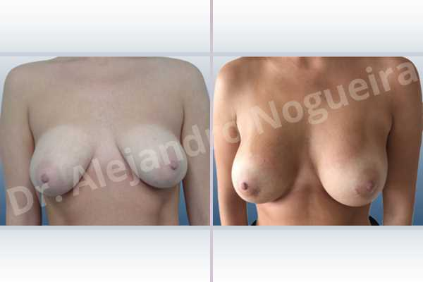 Asymmetric breasts,Empty breasts,Lateral breasts,Moderately saggy droopy breasts,Small breasts,Too far apart wide cleavage breasts,Anatomical shape,Lower hemi periareolar incision,Subfascial pocket plane - photo 1