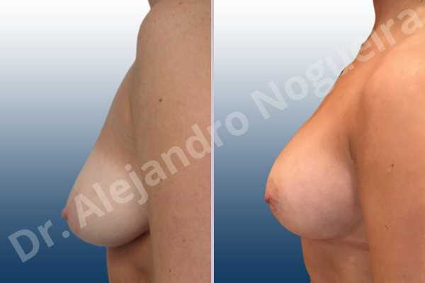 Asymmetric breasts,Empty breasts,Lateral breasts,Moderately saggy droopy breasts,Small breasts,Too far apart wide cleavage breasts,Anatomical shape,Lower hemi periareolar incision,Subfascial pocket plane - photo 2