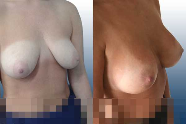 Asymmetric breasts,Empty breasts,Lateral breasts,Moderately saggy droopy breasts,Small breasts,Too far apart wide cleavage breasts,Anatomical shape,Lower hemi periareolar incision,Subfascial pocket plane - photo 5