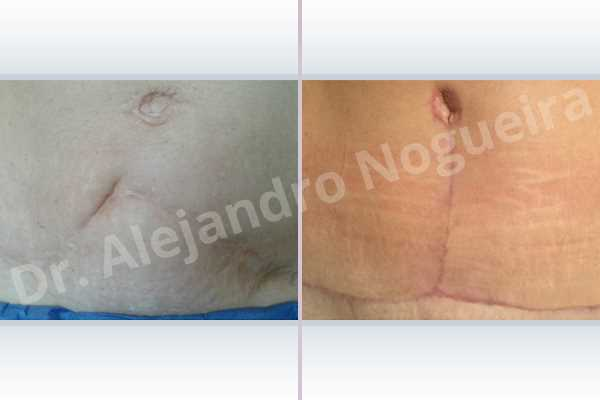 Displaced malpositioned scars,Failed tummy tuck,Hypertrophic scars,Keloid scars,Sunken scars,Wide scars,Excisional scar revision,Fleur de lis abdominoplasty - photo 2