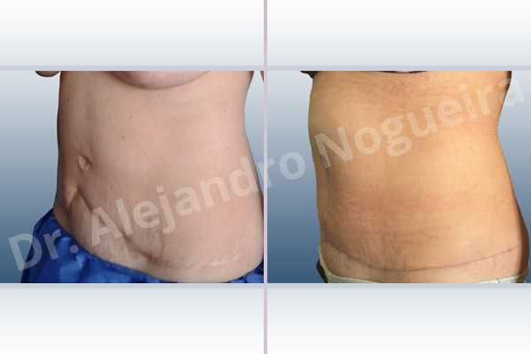Displaced malpositioned scars,Failed tummy tuck,Hypertrophic scars,Keloid scars,Sunken scars,Wide scars,Excisional scar revision,Fleur de lis abdominoplasty - photo 4