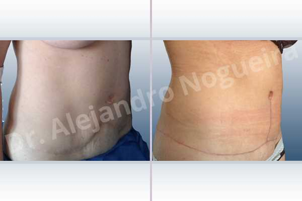 Displaced malpositioned scars,Failed tummy tuck,Hypertrophic scars,Keloid scars,Sunken scars,Wide scars,Excisional scar revision,Fleur de lis abdominoplasty - photo 6