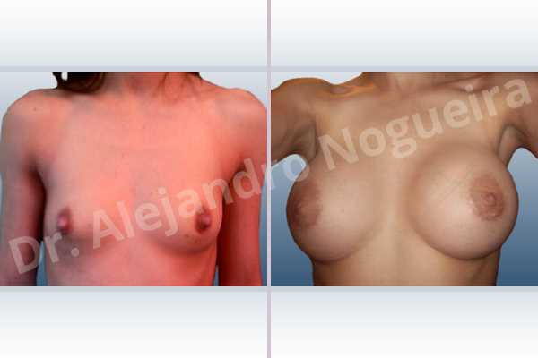Asymmetric breasts,Lateral breasts,Skinny breasts,Small breasts,Too far apart wide cleavage breasts,Extra large size,Lower hemi periareolar incision,Round shape,Subfascial pocket plane - photo 1