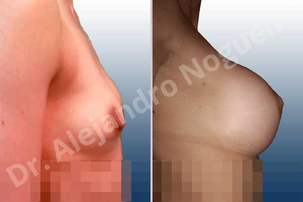 Asymmetric breasts,Lateral breasts,Skinny breasts,Small breasts,Too far apart wide cleavage breasts,Extra large size,Lower hemi periareolar incision,Round shape,Subfascial pocket plane - photo 3