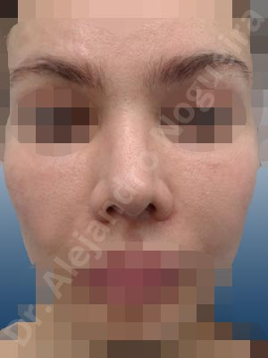 Alar flaring,Alar rim retraction,Asian nose,Boxy tip,Broad dorsum,Broad nose,Crooked nose,Crooked tip,Dynamic alar flaring,Failed osteotomies,Humpless dorsum,Irregular dorsum,Large nostrils,Large sills,Mixed race blood,Nasal fibrosis,Nasal valve collapse,Overrotated tip,Parenthesis tip deformity,Poorly defined tip,Poorly supported tip,Short nose,Short septum,Short upper lateral cartilages,Small alar cartilages,Small nose,Sunken columella,Supratip break,Thick skin nose,Underprojected tip,Alar base resection alarplasty,Columella strut graft,Custom made tip graft,Dorsum plateau resection,Dorsum regularization,Ear cartilage graft harvesting,Extended columella strut graft,Extended shield tip columella graft,Intercrural columella plasty sutures,Interdomal tip plasty sutures,Lateral cruras caudal extension graft,Lateral cruras custom made graft,Lateral cruras lengthening graft,Lateral cruras replacement graft,Lateral cruras repositioning,Nasal bones osteotomies,Onlay columella graft,Onlay tip graft,Open approach incision,Septocolumella graft,Septum caudal extension graft,Shield tip graft,Spreader graft,Tip defatting,Tip replacement graft,Tongue in groove columella setback,Transdomal tip plasty sutures,Triangular cartilages caudal extension graft