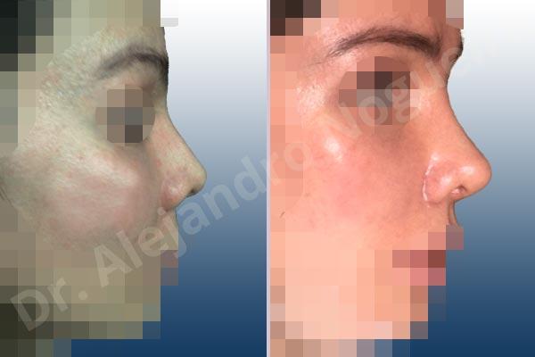 Before & After Case 96AQ8JLT