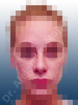 Broad dorsum,Bulbous tip,Dorsum hump,Dorsum ridges,Failed osteotomies,Hourglass dorsum,Inverted V deformity,Irregular dorsum,Large alar cartilages,Narrow dorsum,Nasal fibrosis,Open roof deformity,Overrotated tip,Pinched middle vault,Poorly defined tip,Rounded tip,Short nose,Short septum,Thin skin nose,Columella strut graft,Custom made tip graft,Dorsum hump resection,Dorsum regularization,Ear cartilage graft harvesting,Intercrural columella plasty sutures,Interdomal tip plasty sutures,Lateral cruras cephalic resection,Lateral cruras plasty sutures,Nasal bones osteotomies,Open approach incision,Septal cartilage graft harvesting,Septum caudal extension graft,Shield tip graft,Spreader graft,Temporalis fascia graft harvesting,Tip defatting,Tongue in groove columella setback,Transdomal tip plasty scoring,Transdomal tip plasty sutures