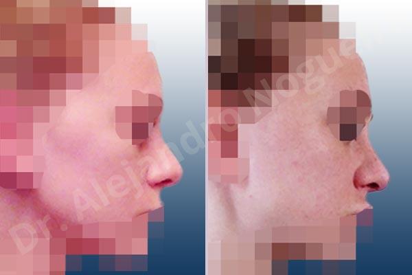Before & After Case 98FBENLL