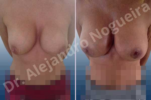 Before & After Case 9AQAV4LN