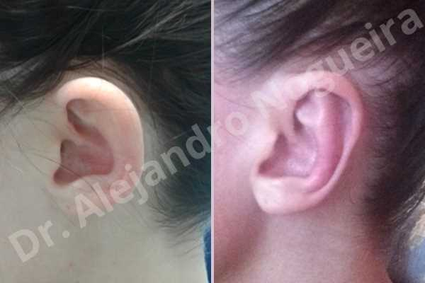 Prominent ears,Mustardé antihelical suturing - photo 2