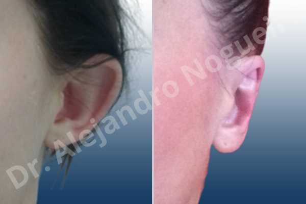 Before & After Case 9DAH2K4M
