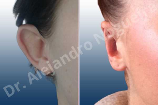 Prominent ears,Mustardé antihelical suturing - photo 5