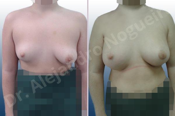 Before & After Case 9EF8KGLA