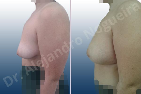 Asymmetric breasts,Empty breasts,Lateral breasts,Moderately saggy droopy breasts,Small breasts,Too far apart wide cleavage breasts,Tuberous breasts,Wide breasts,Anatomical shape,Inframammary incision,Lower hemi periareolar incision,Subfascial pocket plane,Tuberous mammoplasty - photo 2