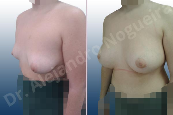Asymmetric breasts,Empty breasts,Lateral breasts,Moderately saggy droopy breasts,Small breasts,Too far apart wide cleavage breasts,Tuberous breasts,Wide breasts,Anatomical shape,Inframammary incision,Lower hemi periareolar incision,Subfascial pocket plane,Tuberous mammoplasty - photo 3