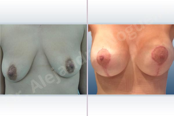 Asymmetric breasts,Breast implants bottoming out,Breast implants displacement malposition,Breast implants excessive movement,Breast implants lateral slide,Empty breasts,Failed breast lift,Moderately saggy droopy breasts,Skinny breasts,Small breasts,Anatomical shape,Capsulectomy,Excisional scar revision,Internal bra capsulorrhaphy,Lollipop incision,Subfascial pocket plane - photo 1