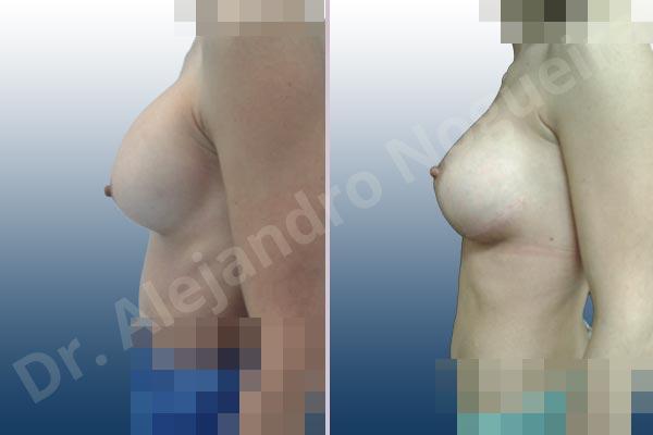 Before & After Case 9HJMZCIC