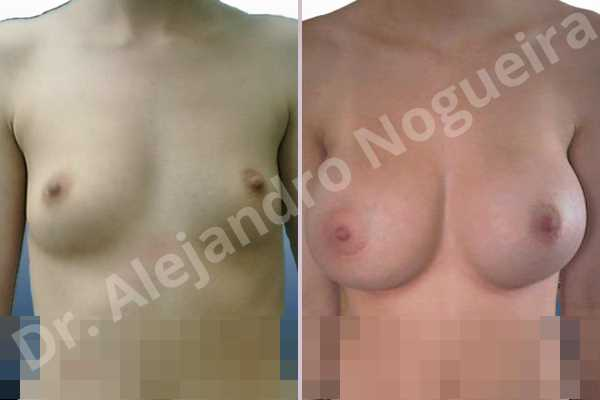 Before & After Case 9MMUBCMQ