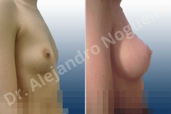 Asymmetric breasts,Cross eyed breasts,Lateral breasts,Narrow breasts,Pigeon chest,Skinny breasts,Small breasts,Anatomical shape,Lower hemi periareolar incision,Subfascial pocket plane - photo 4