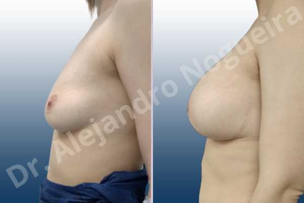 Asymmetric breasts,Empty breasts,Mildly saggy droopy breasts,Slightly saggy droopy breasts,Small breasts,Wide breasts,Anatomical shape,Lower hemi periareolar incision,Subfascial pocket plane - photo 2