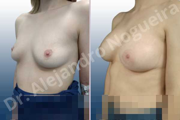 Asymmetric breasts,Empty breasts,Mildly saggy droopy breasts,Slightly saggy droopy breasts,Small breasts,Wide breasts,Anatomical shape,Lower hemi periareolar incision,Subfascial pocket plane - photo 3