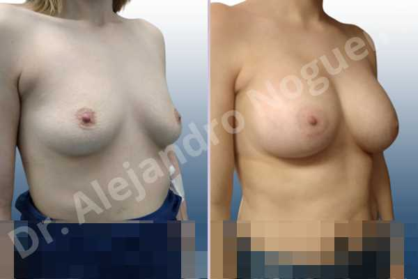 Asymmetric breasts,Empty breasts,Mildly saggy droopy breasts,Slightly saggy droopy breasts,Small breasts,Wide breasts,Anatomical shape,Lower hemi periareolar incision,Subfascial pocket plane - photo 5