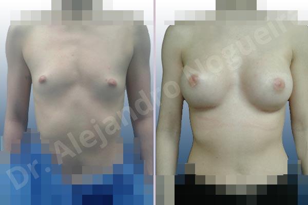 Before & After Case 9NB6DMNZ