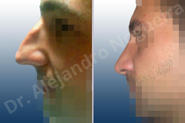 Alar flaring,Broad dorsum,Broad nose,Crooked nose,Dorsum hump,Dorsum ridges,Droopy tip,Dynamic alar flaring,Large alar cartilages,Large nose,Long nose,Long upper lateral cartilages,Mediterranean nose,Overprojected tip,Plunging tip deformity,Rhomboid dorsum,Closed approach incision,Dorsum hump resection,Lateral cruras cephalic resection,Lateral cruras shortening resection,Medial cruras shortening resection,Nasal bones osteotomies,Triangular cartilages caudal resection - photo 2