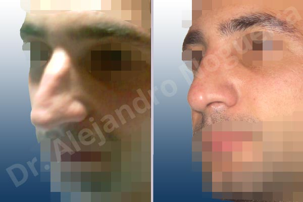 Alar flaring,Broad dorsum,Broad nose,Crooked nose,Dorsum hump,Dorsum ridges,Droopy tip,Dynamic alar flaring,Large alar cartilages,Large nose,Long nose,Long upper lateral cartilages,Mediterranean nose,Overprojected tip,Plunging tip deformity,Rhomboid dorsum,Closed approach incision,Dorsum hump resection,Lateral cruras cephalic resection,Lateral cruras shortening resection,Medial cruras shortening resection,Nasal bones osteotomies,Triangular cartilages caudal resection - photo 3