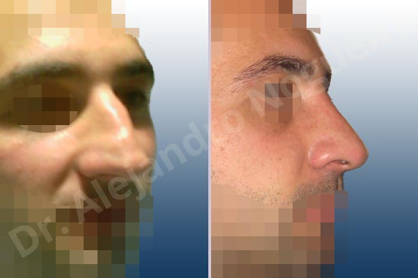 Alar flaring,Broad dorsum,Broad nose,Crooked nose,Dorsum hump,Dorsum ridges,Droopy tip,Dynamic alar flaring,Large alar cartilages,Large nose,Long nose,Long upper lateral cartilages,Mediterranean nose,Overprojected tip,Plunging tip deformity,Rhomboid dorsum,Closed approach incision,Dorsum hump resection,Lateral cruras cephalic resection,Lateral cruras shortening resection,Medial cruras shortening resection,Nasal bones osteotomies,Triangular cartilages caudal resection - photo 5