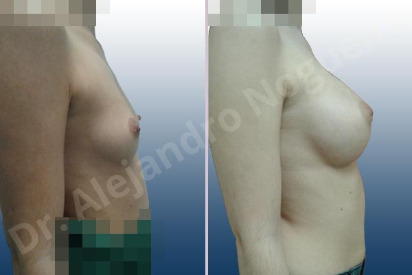 Before & After Case 9UADGMNX