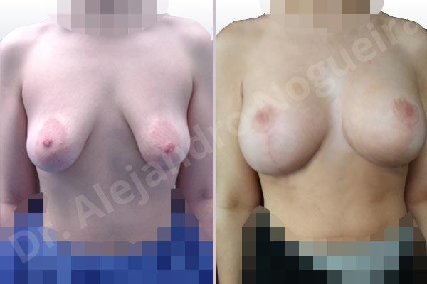 Before & After Case 9UWKAMQ3