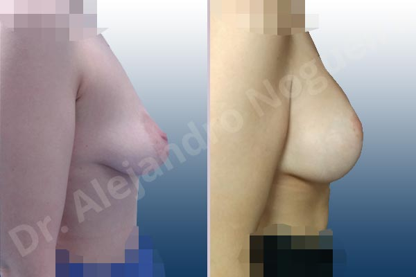 Asymmetric breasts,Empty breasts,Large areolas,Lateral breasts,Moderately saggy droopy breasts,Narrow breasts,Pendulous breasts,Pigeon chest,Skinny breasts,Small breasts,Too far apart wide cleavage breasts,Tuberous breasts,Anatomical shape,Areola reduction,Lollipop incision,Subfascial pocket plane,Superior pedicle - photo 4