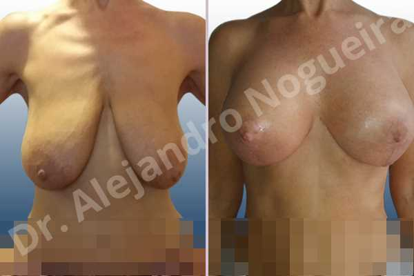 Asymmetric breasts,Empty breasts,Extremely saggy droopy breasts,Large areolas,Mildly large breasts,Pendulous breasts,Tuberous breasts,Anatomical shape,Anchor incision,Areola reduction,Double vertical pedicle,Subfascial pocket plane - photo 1