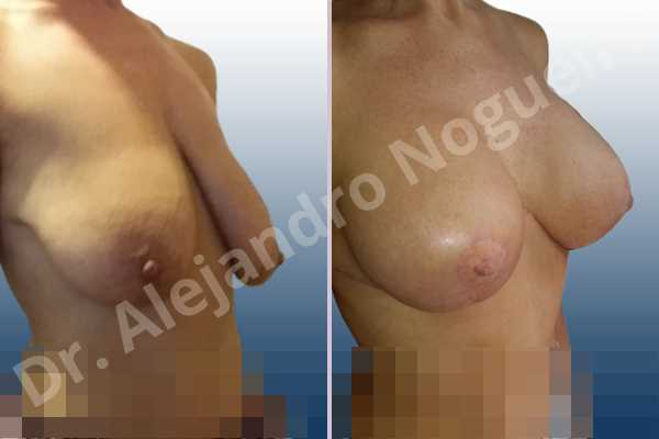 Asymmetric breasts,Empty breasts,Extremely saggy droopy breasts,Large areolas,Mildly large breasts,Pendulous breasts,Tuberous breasts,Anatomical shape,Anchor incision,Areola reduction,Double vertical pedicle,Subfascial pocket plane - photo 4