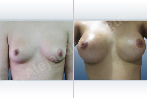 Asymmetric breasts,Cross eyed breasts,Empty breasts,Narrow breasts,Skinny breasts,Small breasts,Inframammary incision,Round shape,Subfascial pocket plane - photo 1