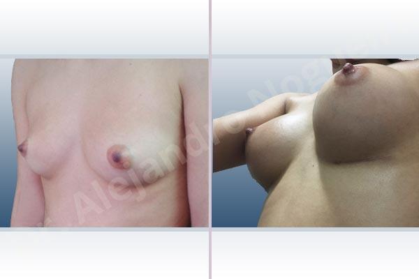 Asymmetric breasts,Cross eyed breasts,Empty breasts,Narrow breasts,Skinny breasts,Small breasts,Inframammary incision,Round shape,Subfascial pocket plane - photo 3