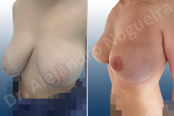 Before & After Case 9YJHH8LM