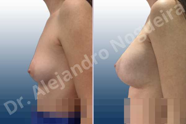 Asymmetric breasts,Empty breasts,Lateral breasts,Small breasts,Sunken chest,Too far apart wide cleavage breasts,Wide breasts,Anatomical shape,Lower hemi periareolar incision,Subfascial pocket plane - photo 2