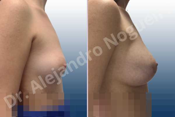 Asymmetric breasts,Empty breasts,Lateral breasts,Small breasts,Sunken chest,Too far apart wide cleavage breasts,Wide breasts,Anatomical shape,Lower hemi periareolar incision,Subfascial pocket plane - photo 4